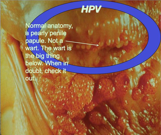 Genital Warts HPV Virus in Women